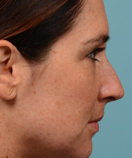 Straighten nose rhinoplasty