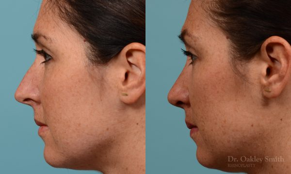Straighten nose rhinoplasty