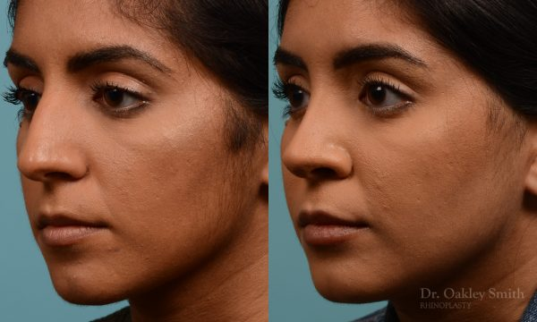 Female nose rhinoplasty remove curvature