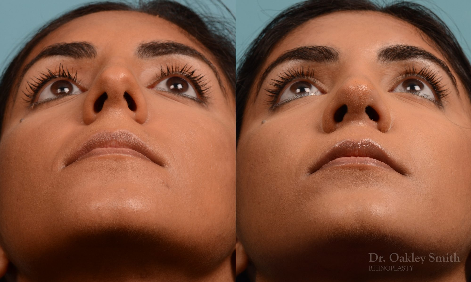 Rhinoplasty hump removal
