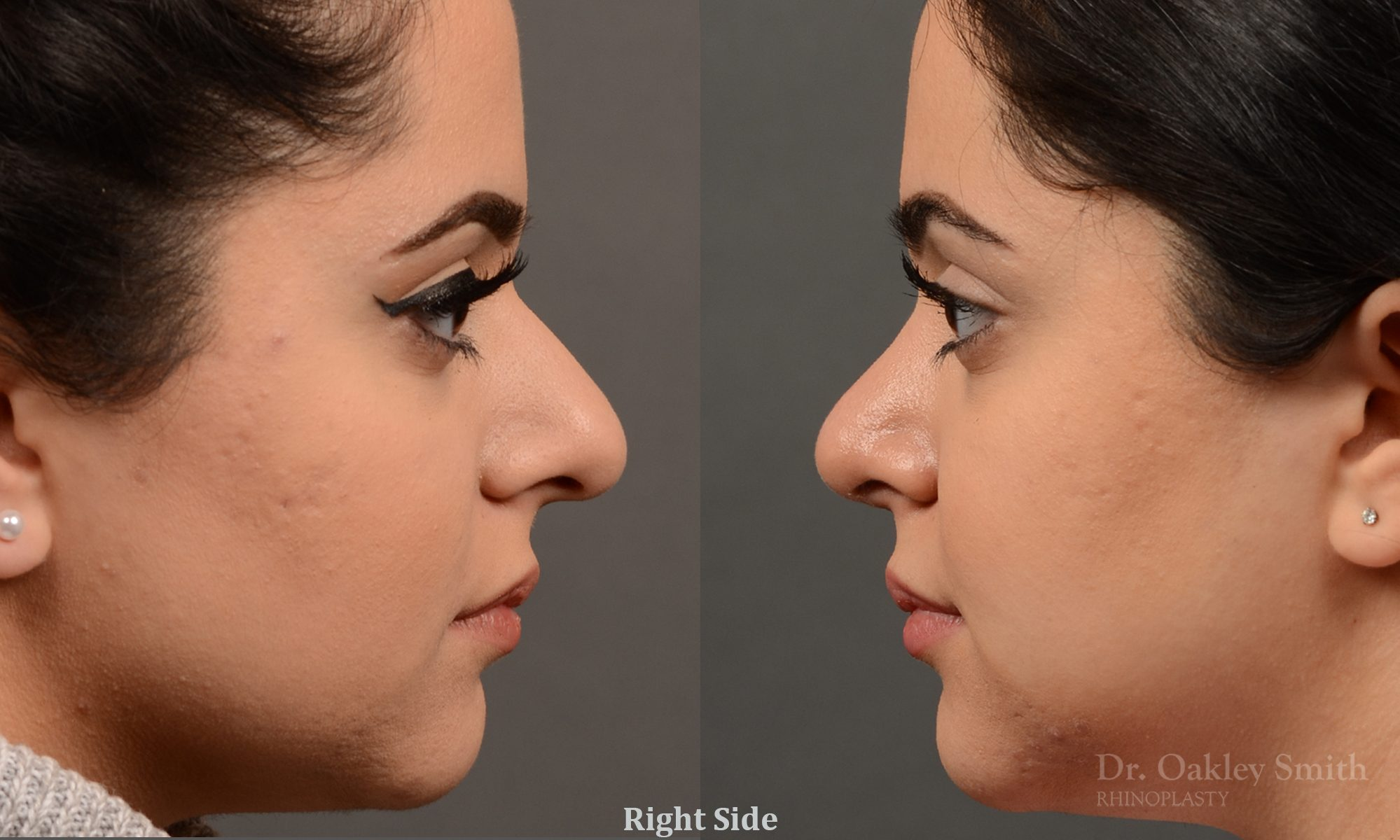 This young lady disliked the way her nose 'hooked'.