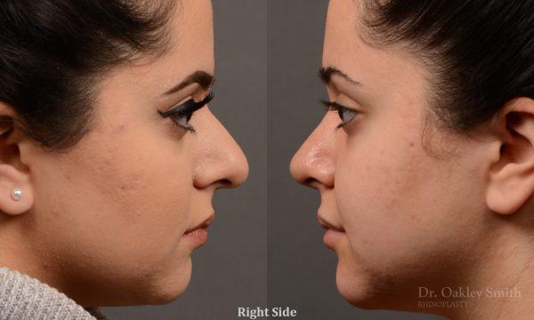 Bump hump removal rhinoplasty surgery