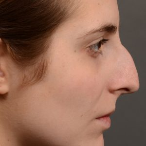 Large hump rhinoplasty nose surgery