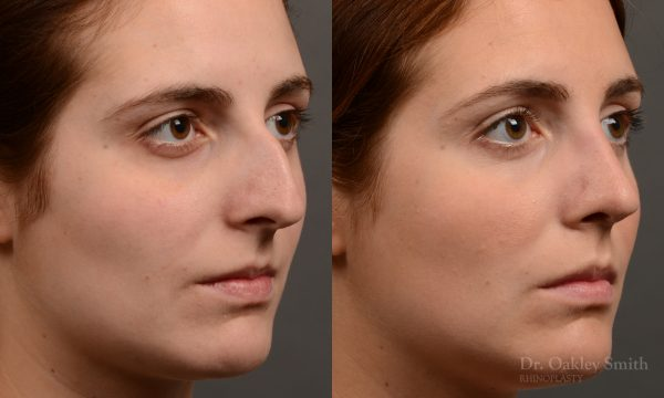 Large hump rhinoplasty nose surgery