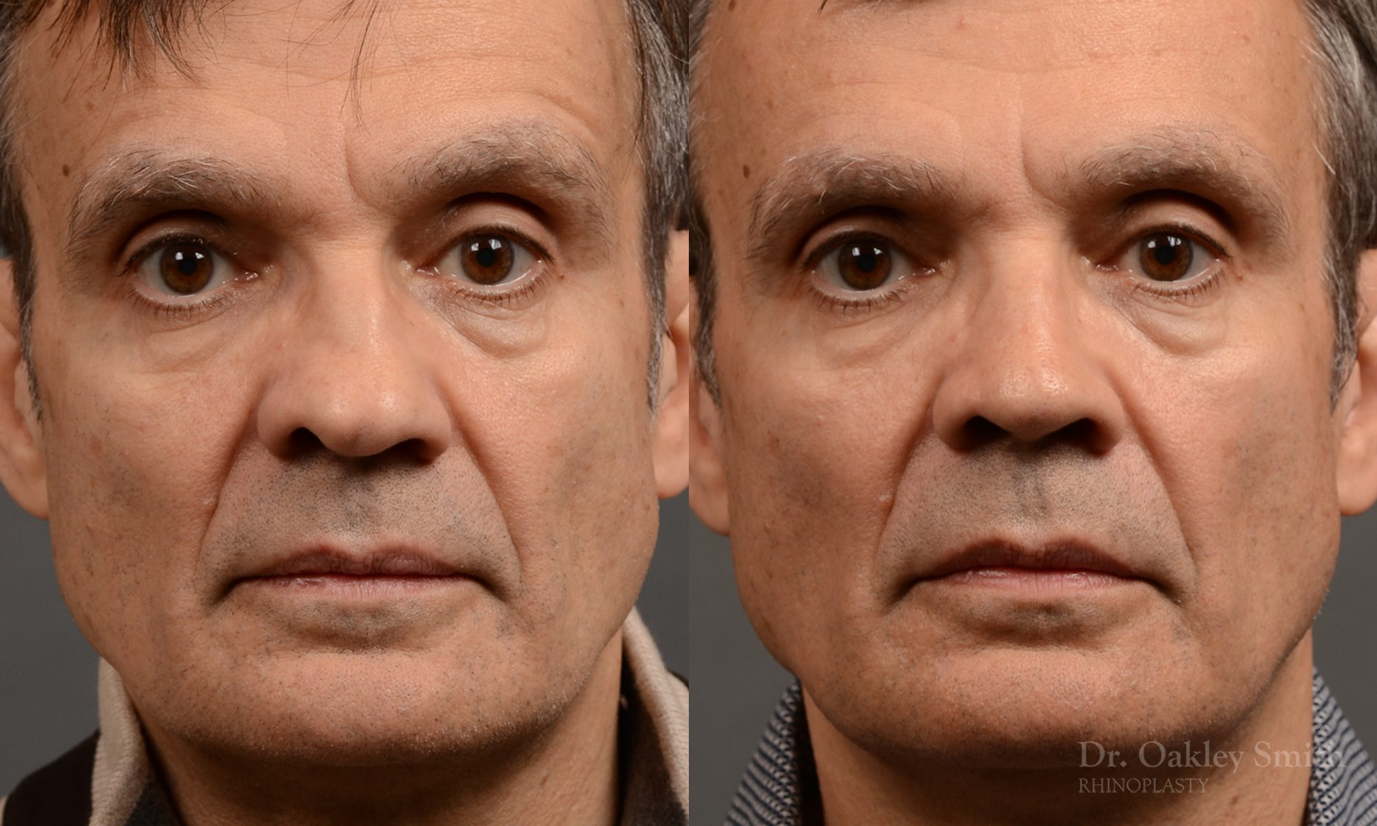 Male nose rhinoplasty