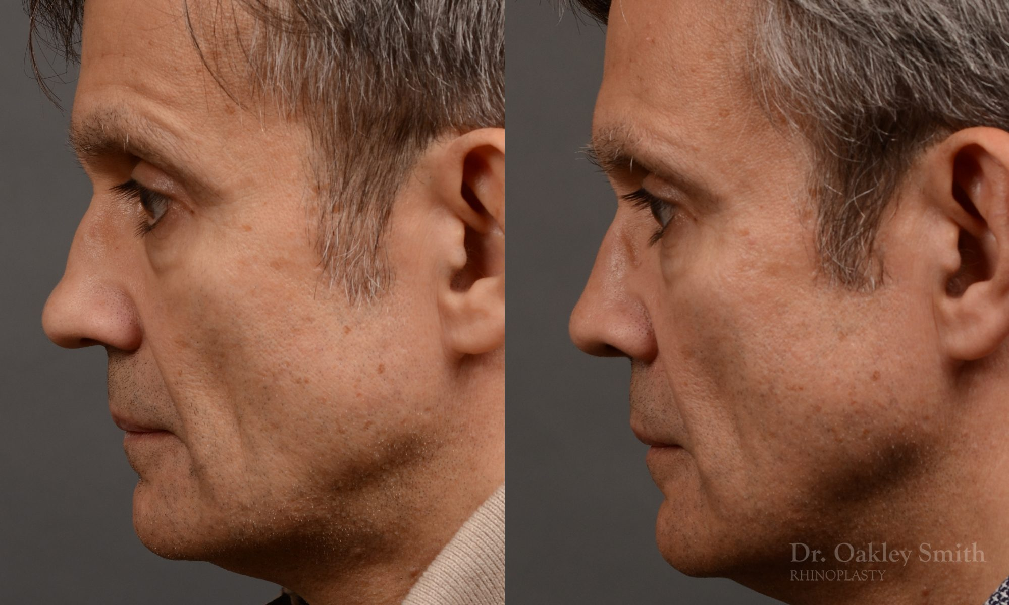 Revision Rhinoplasty - Rhinoplasty Nose Before and After Case 306