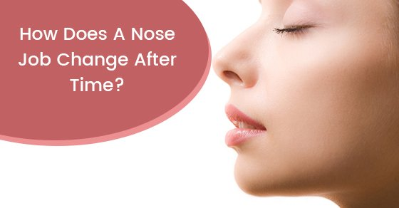 How Does A Nose Job Change Over Time?