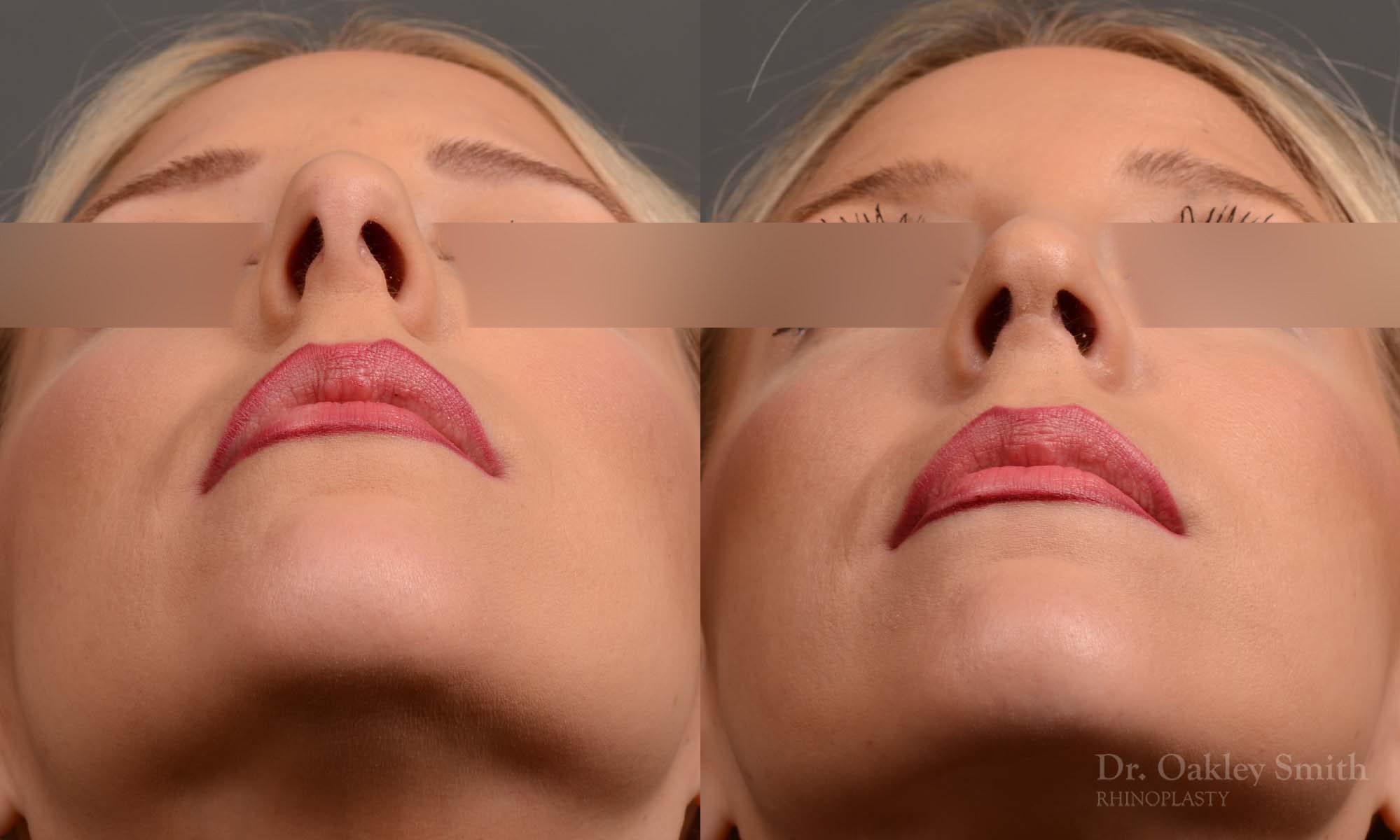 Hump reduction rhisnoplasty