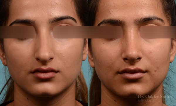 Shorten nose rhinoplasty