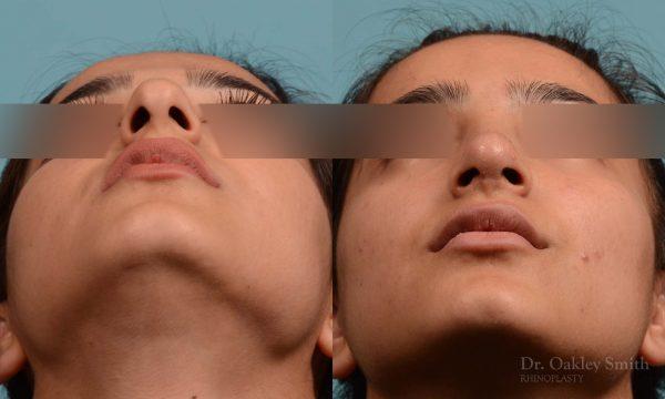 Shorten nose rhinoplasty
