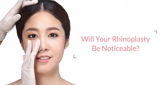 Noticeable Rhinoplasty