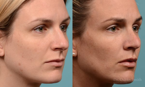 curved nose rhinoplasty