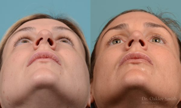 Rhinoplasty - Rhinoplasty Before and After Case 312
