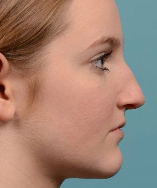 Hump reduction rhinoplasty young female