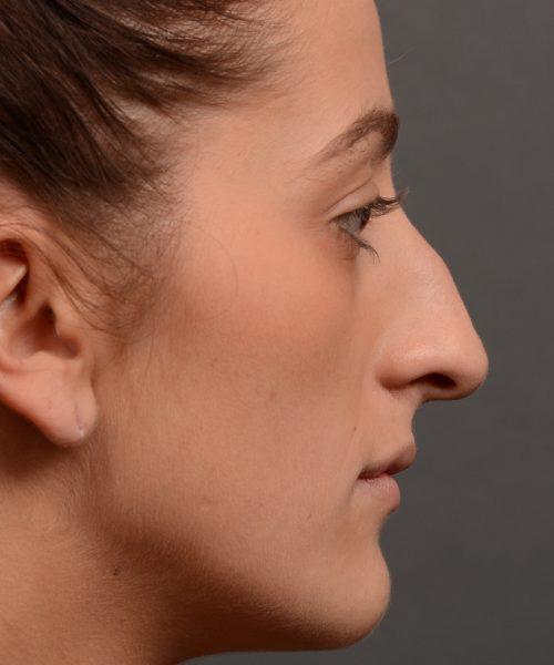 Feminine curved nose post rhinoplasty