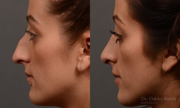 Feminine curved nose post rhinoplasty