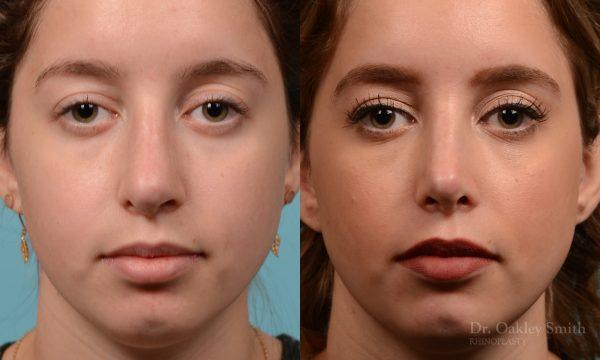 Septoplasty rhinoplasty nose surgery