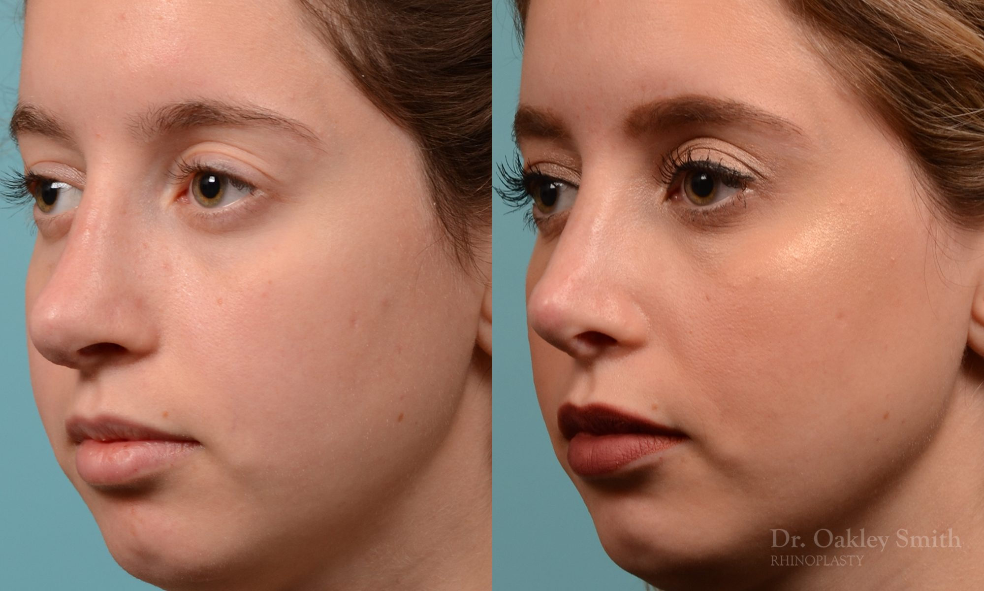 Septoplasty rhinoplasty nose surgery