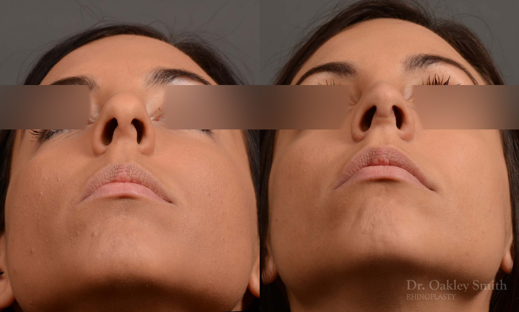 nose hump reduction rhinoplasty female nose job
