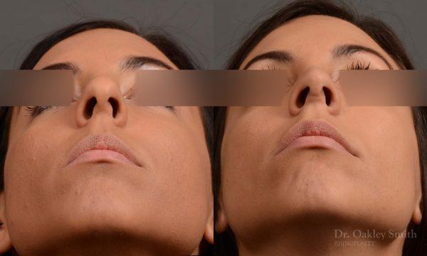nose hump reduction rhinoplasty female nose job