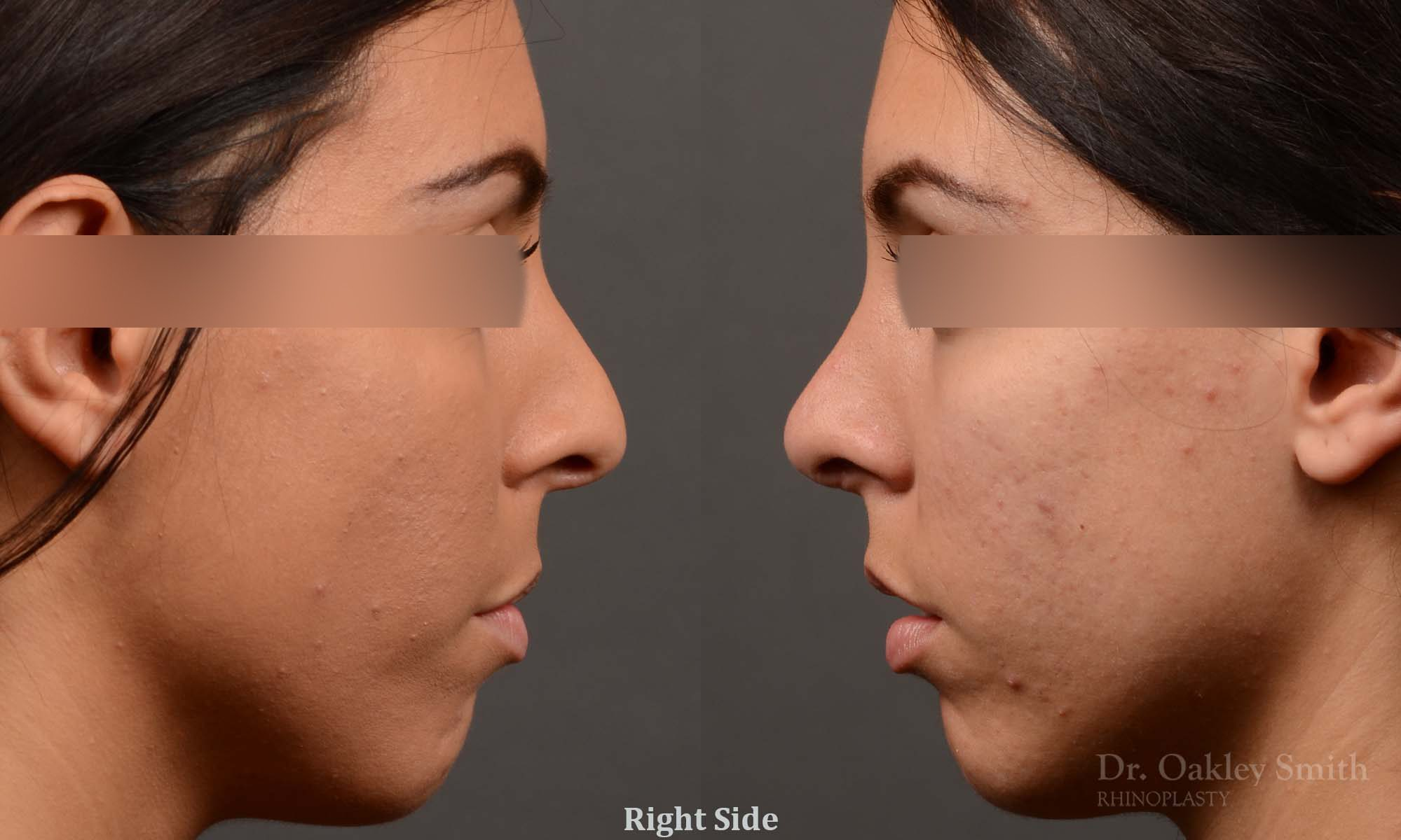Hump reduction female rhinoplasty