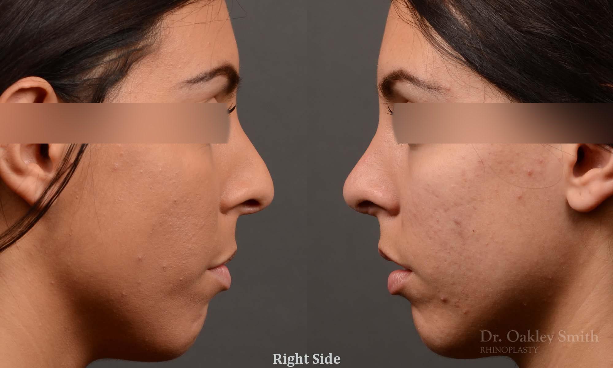 Hump reduction female rhinoplasty