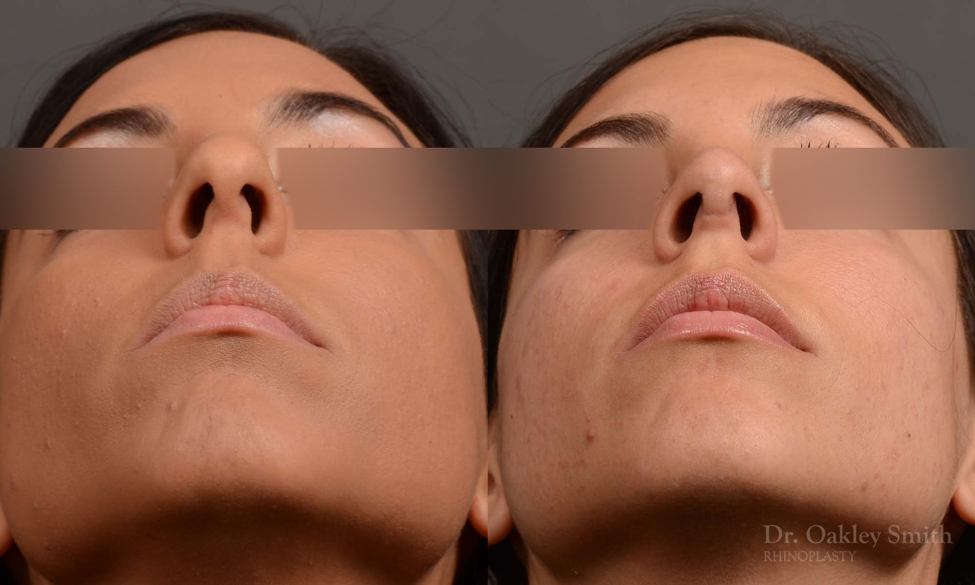 Hump Reduction, Rhinoplasty - Rhinoplasty Before and After Case 320