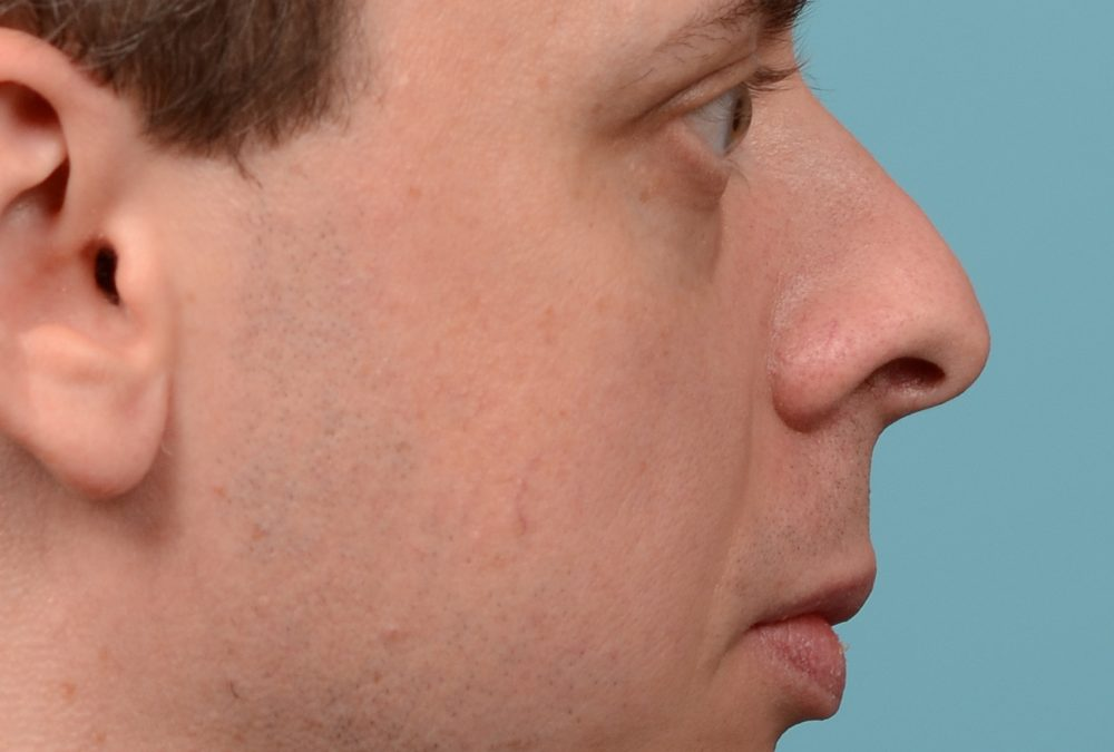 Rhinoplasty Nose Before and After Case 321