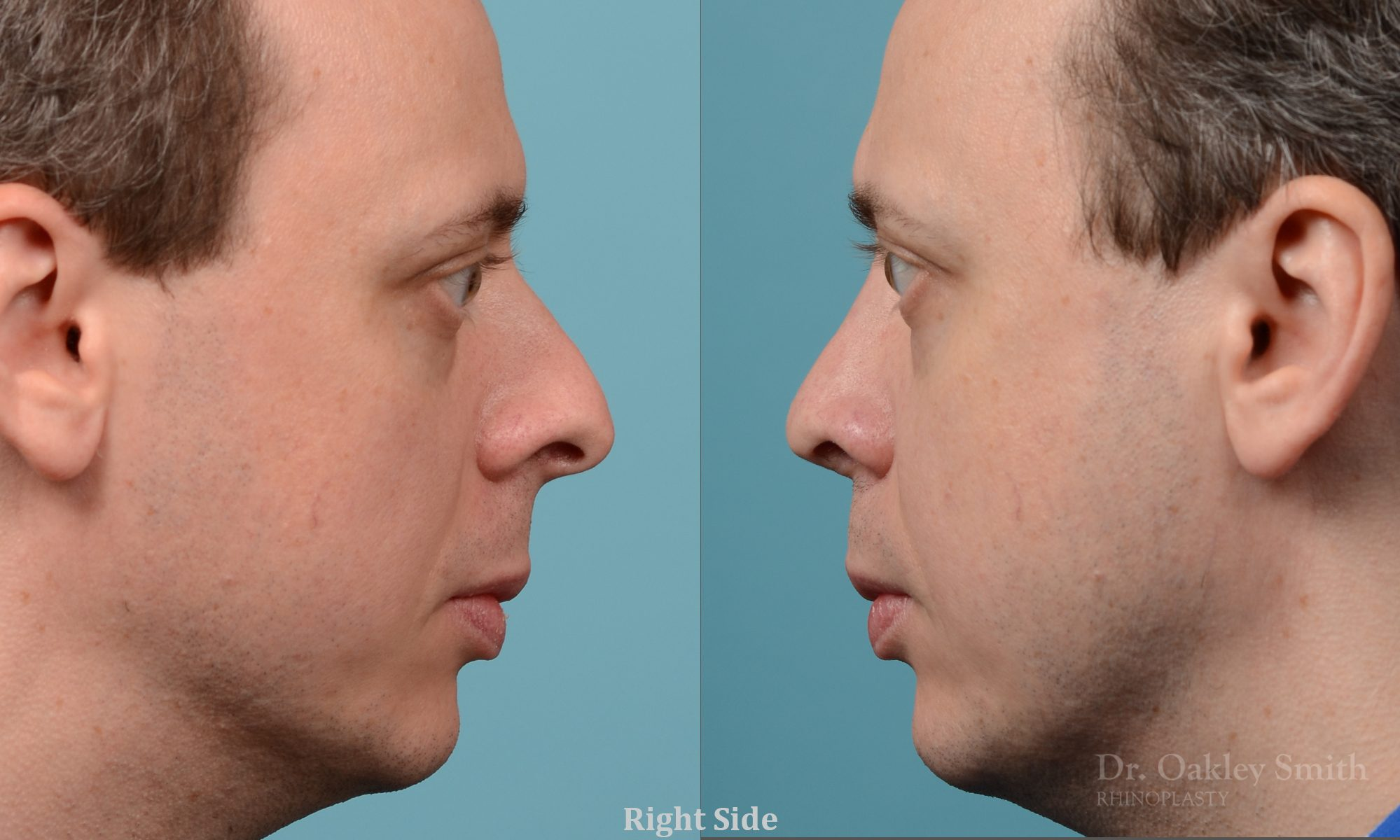 male nose rhinoplasty curved nose
