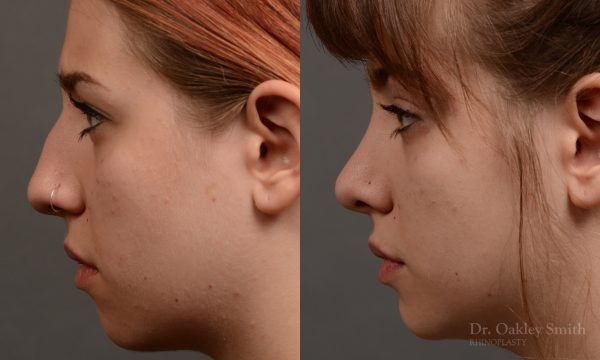 female rhinoplasty to straigthen her nose