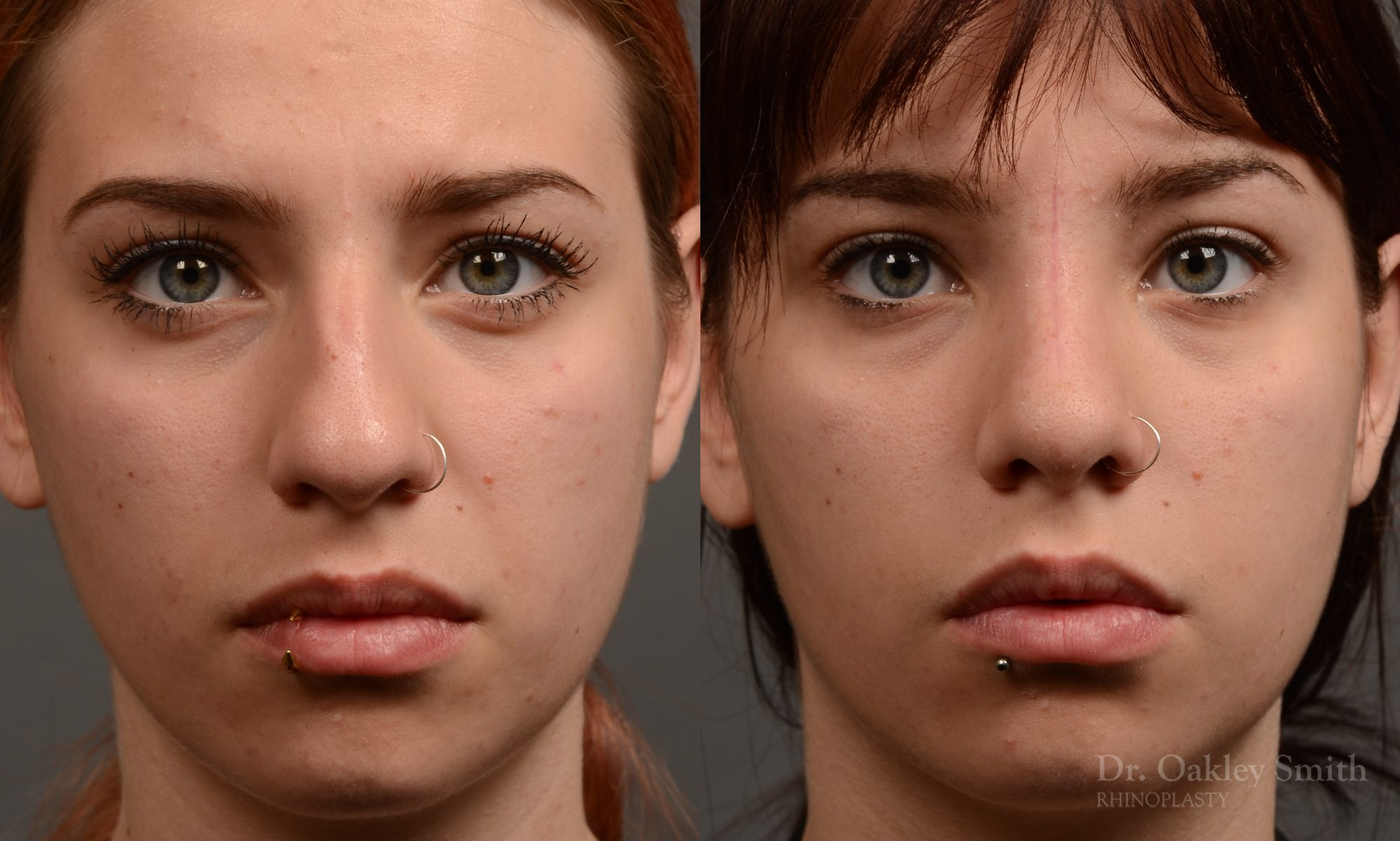 Rhinoplasty hump reduction on young women