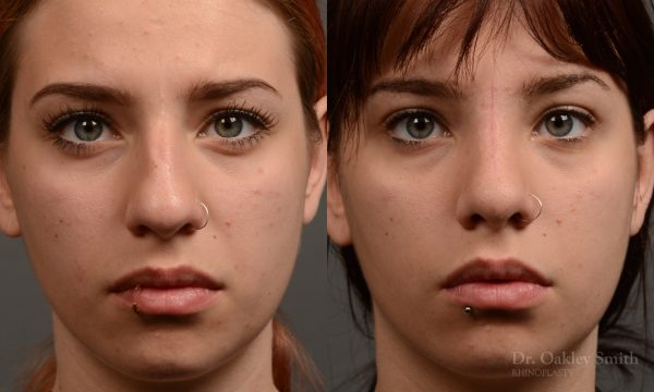 Rhinoplasty hump reduction on young women