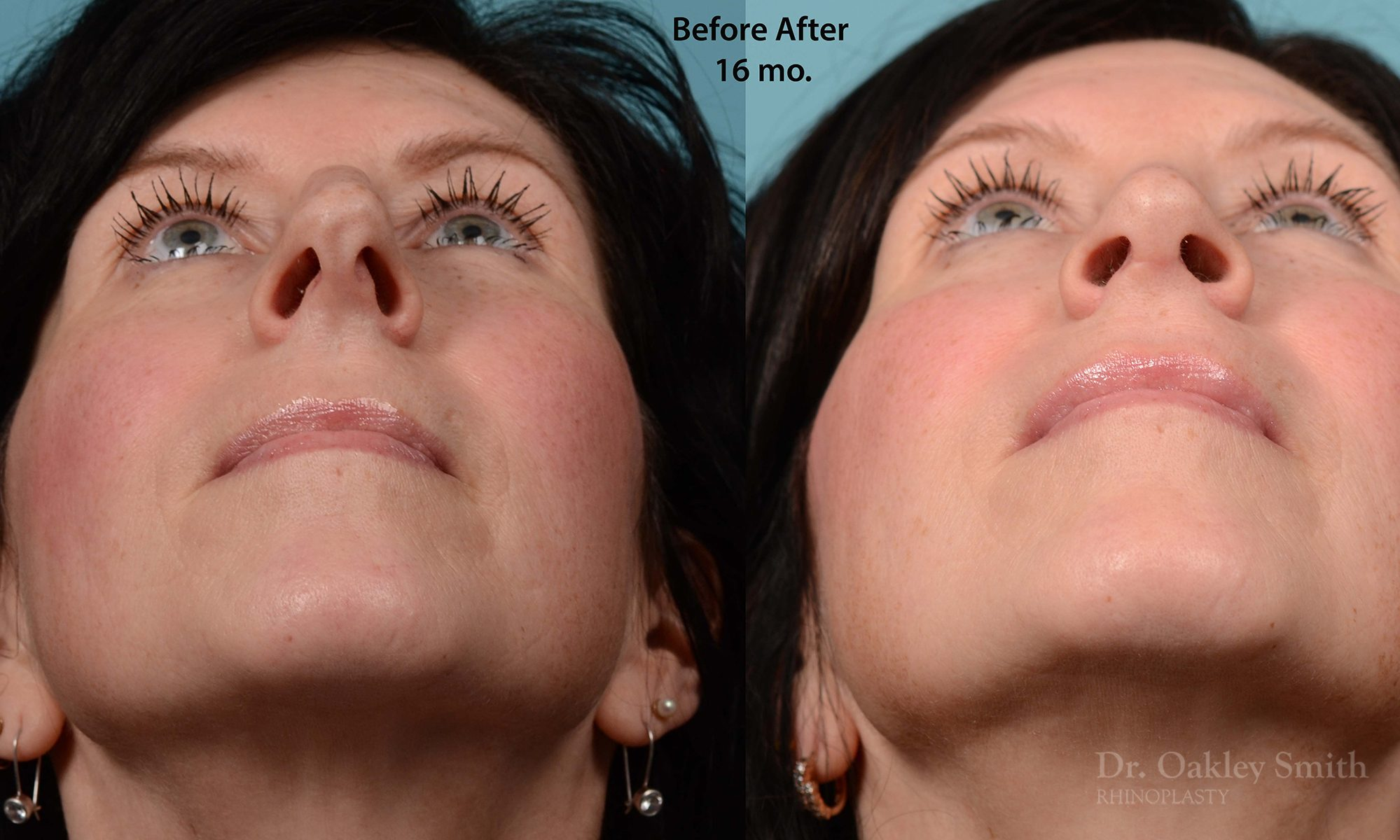 Hump reduction rhinoplasty on woman