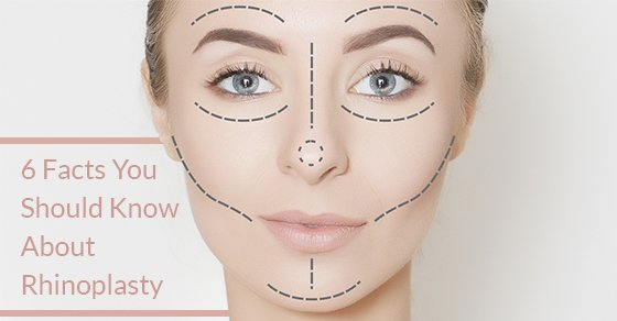6 Facts You Need To Know About Rhinoplasty