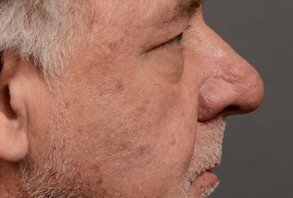 Rhinoplasty Before and After Case 325