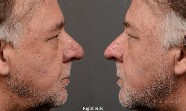 rhinoplasty OHIP nose surgery for breathing