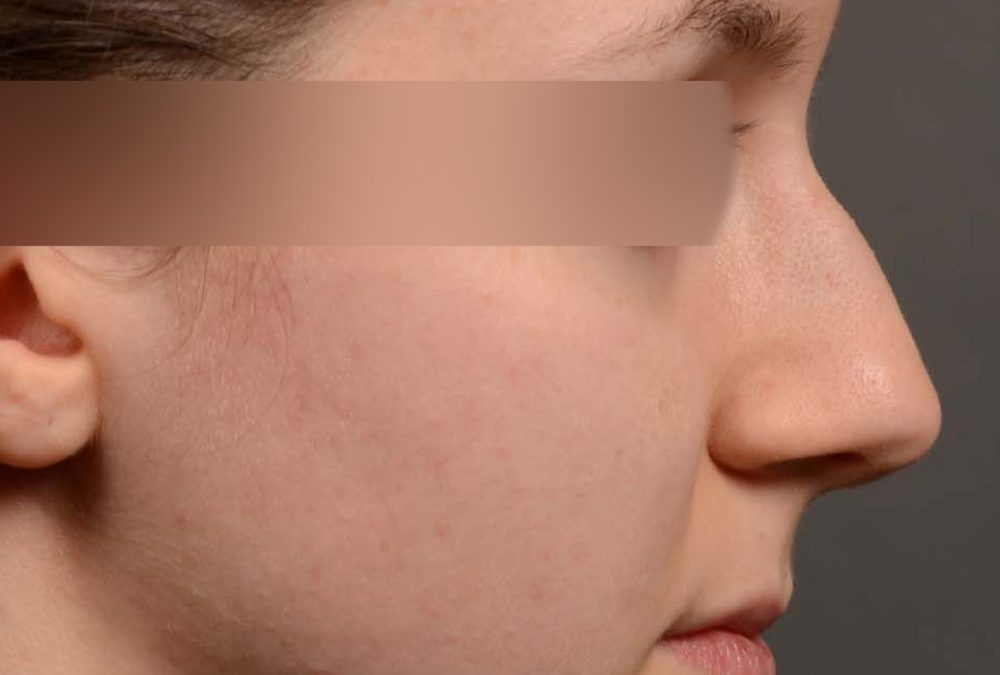 Rhinoplasty before and after Case 326