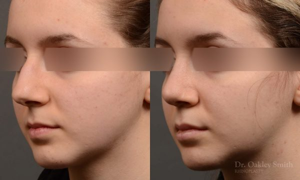 hump reduction rhinoplasty for asthetics