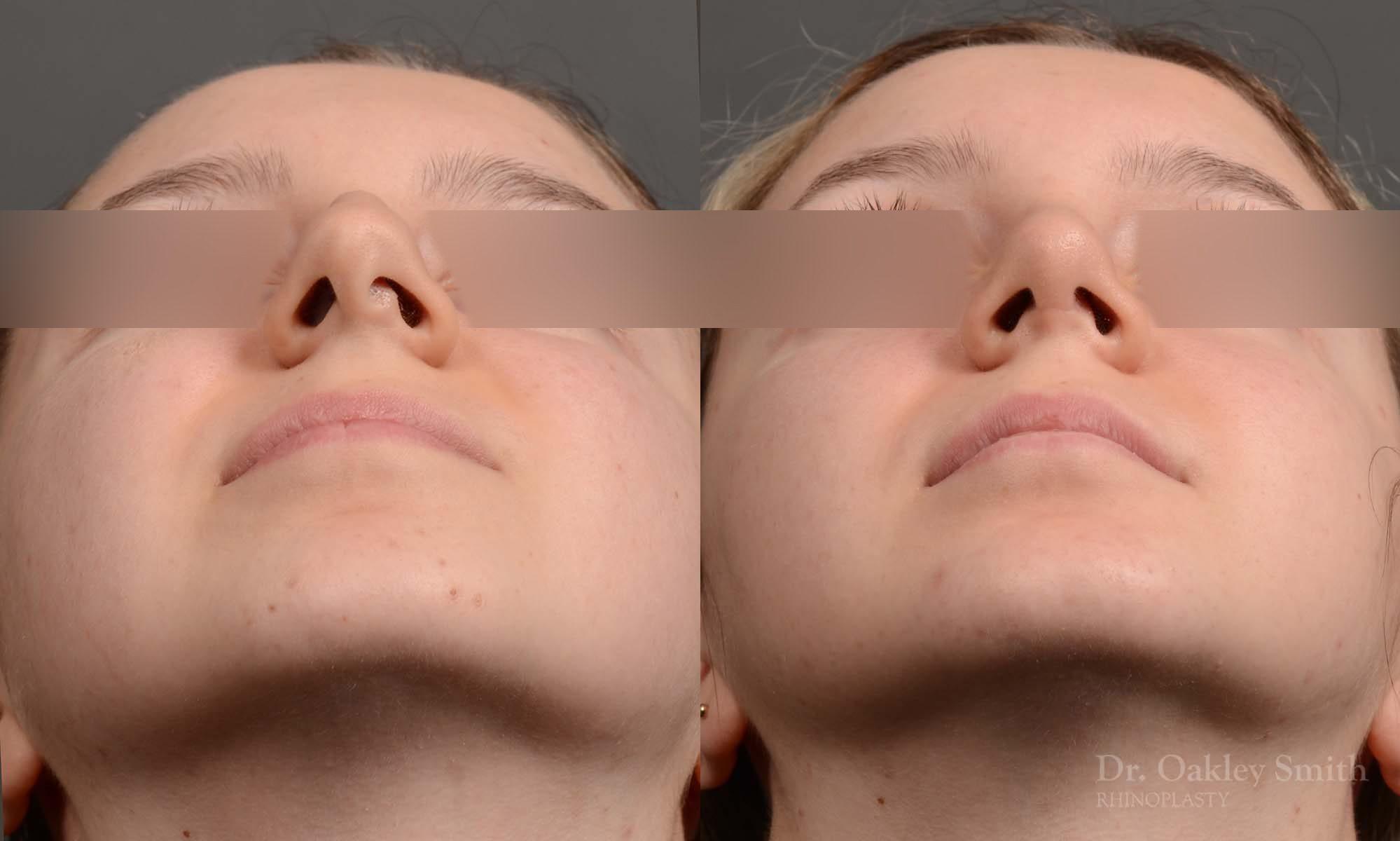 hump reduction rhinoplasty for asthetics