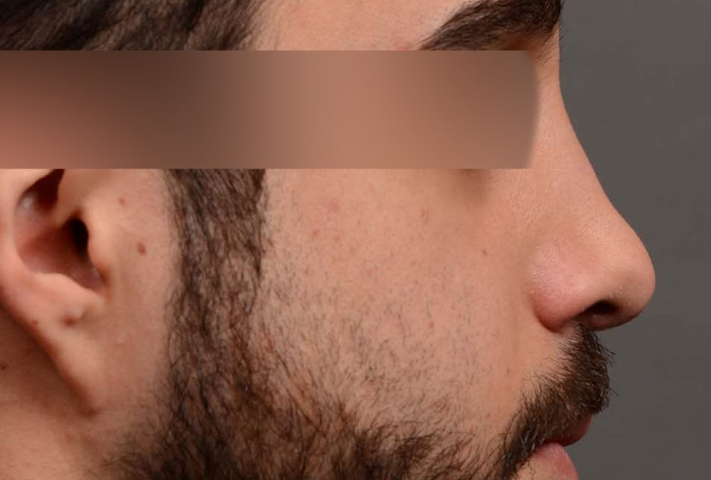 Rhinoplasty Before and After Case 327