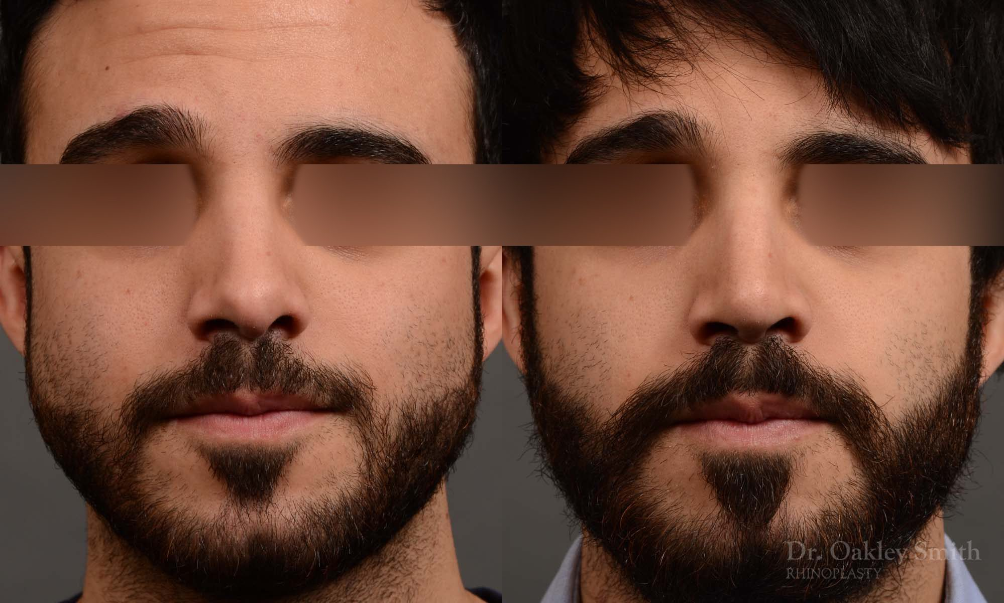 Male revision rhinoplasty