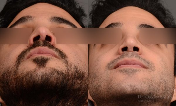 OHIP male rhinoplasty dr oakley smith