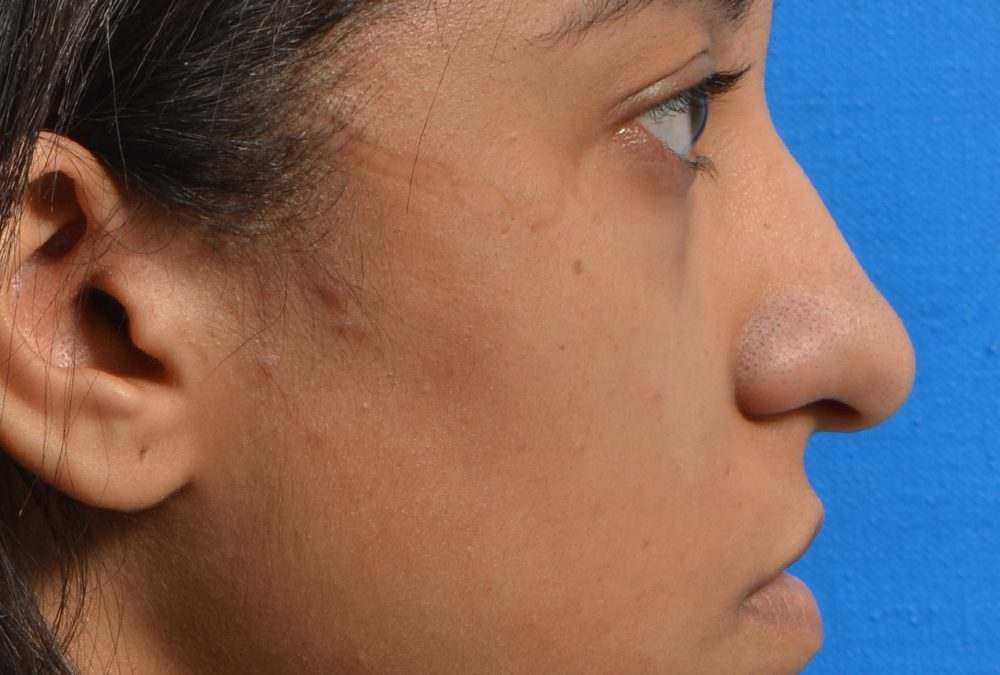 Rhinoplasty Before and After Case 282