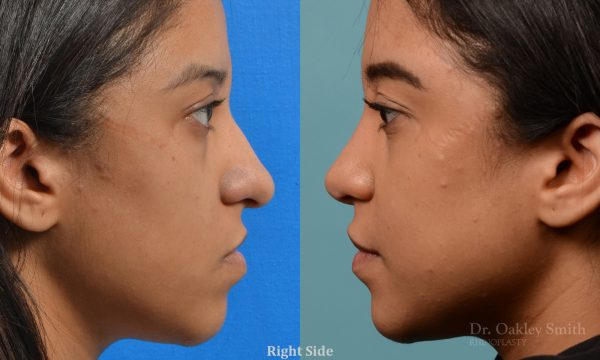 Female rhinoplasty for hump removal.