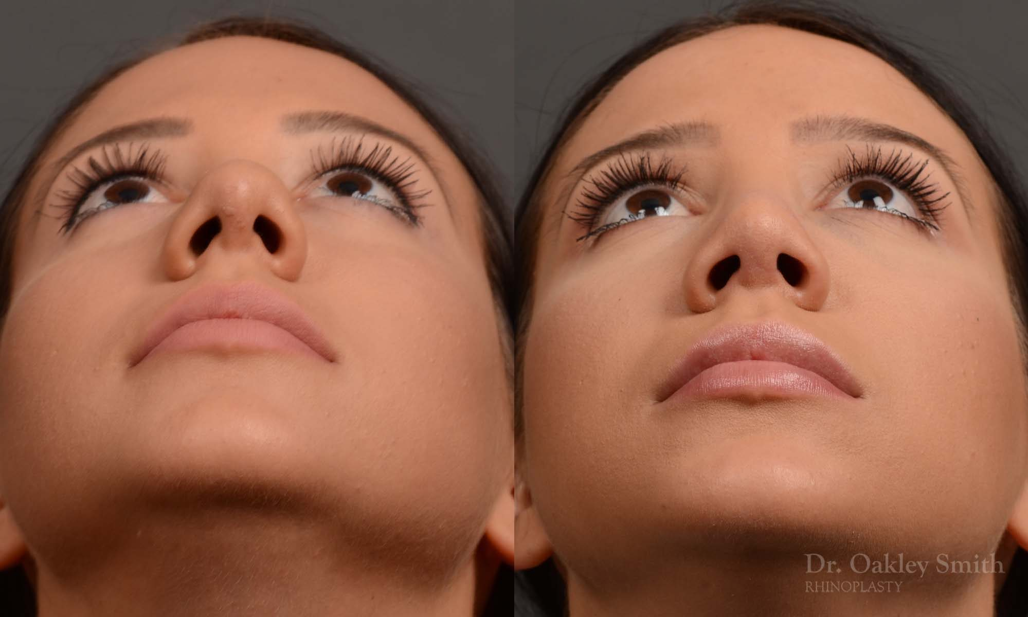 Base of nose narrowing rhinoplasty