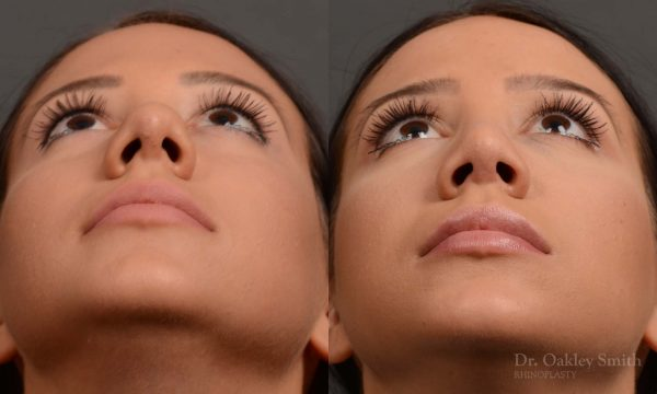Base of nose narrowing rhinoplasty