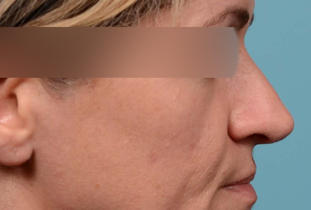 Rhinoplasty Before and After Case 329