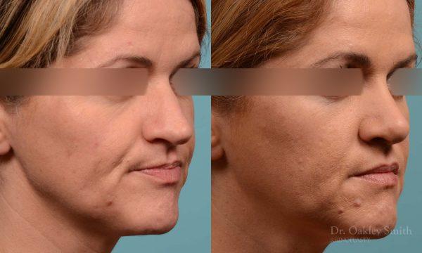 rhinoplasty nose reduction female