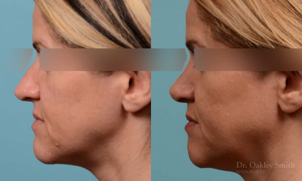 rhinoplasty nose reduction female
