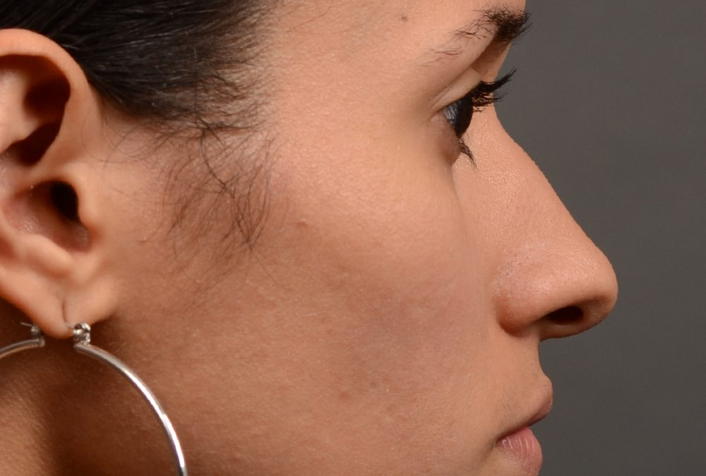 Rhinoplasty Before and After Case 330